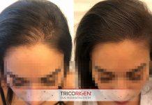 tricopigmentarea