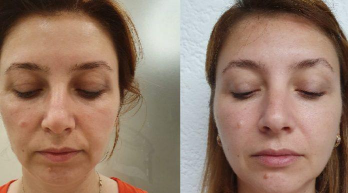 masajul facial inainte dupa