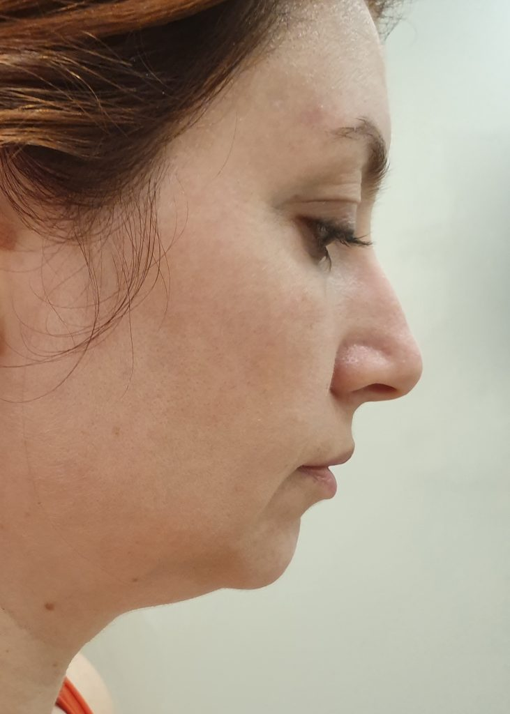 fasajul facial