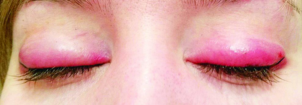 alergia dupa tatuaj cosmetic